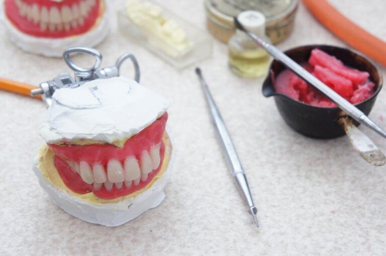 人工歯の配列と試適