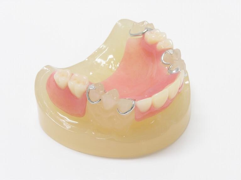 保険でできる入れ歯