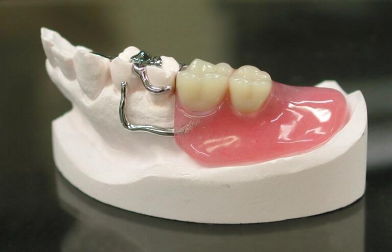 入れ歯についている金属が気になります