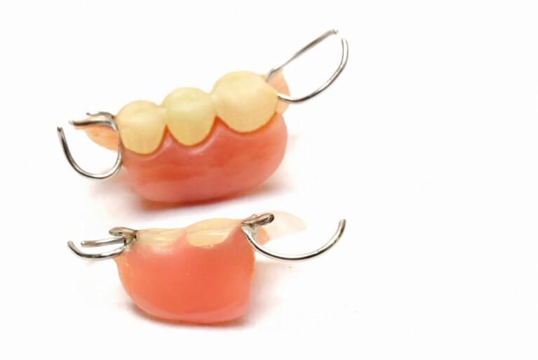 部分入れ歯について
