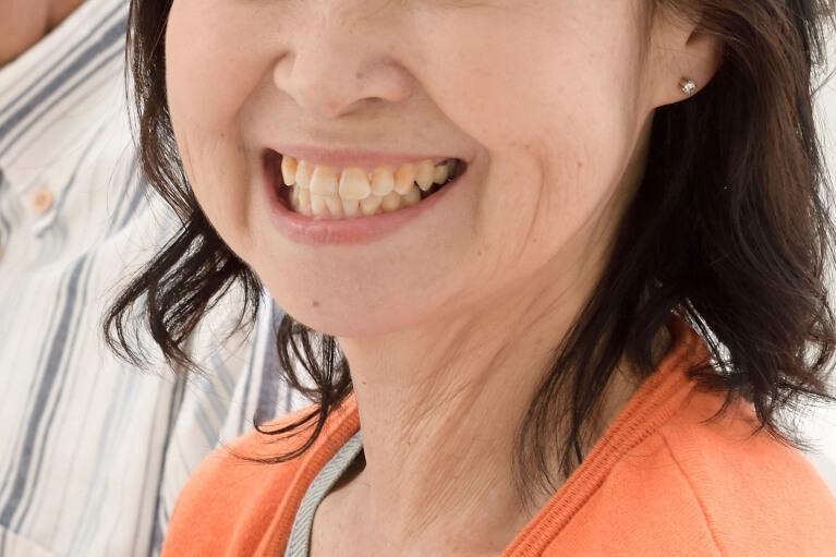 「残りの歯を長持ち」させる部分入れ歯